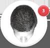 como reverter a queda de cabelo