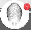 hair loss blocker funciona yahoo