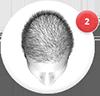 hair loss blocker yahoo