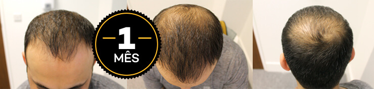 resultados antes e depois do hair loss blocker