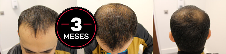 resultados do hair loss blocker antes e depois
