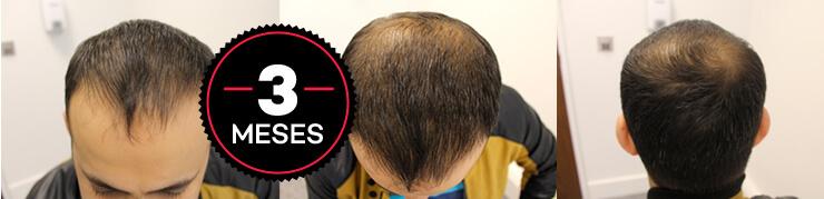 resultados do hair loss blocker antes e depois