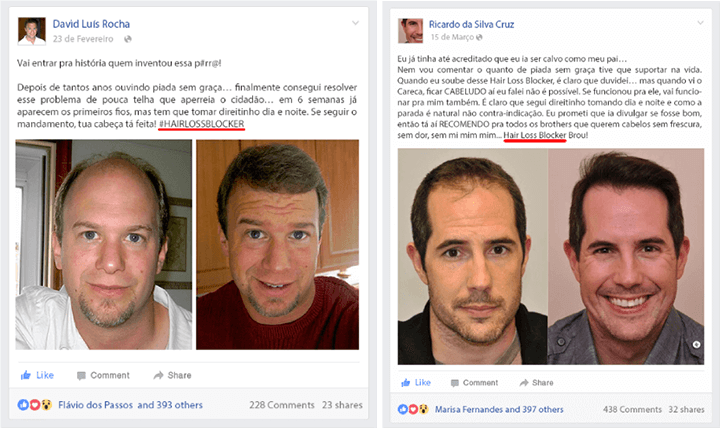 hair loss blocker antes e depois